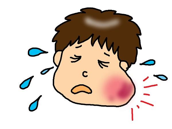 おたふく風邪で耳が痛い!この痛みはいつまで続くの?